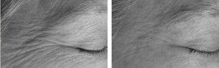 Подтяжка кожи с помощью мультирадиолифтинга