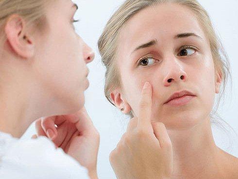 Рекомендации по уходу за подростковой кожей